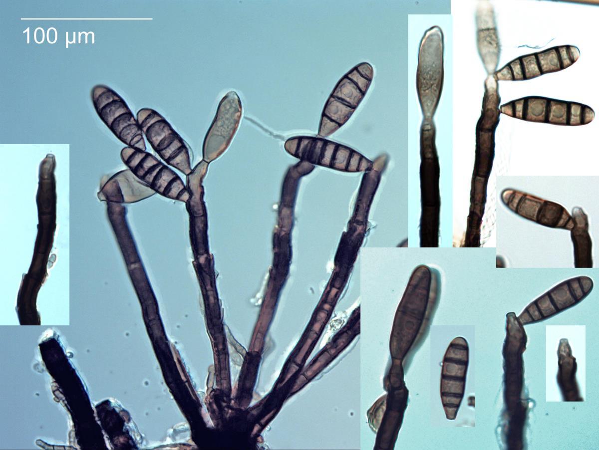Image of Nigrolentilocus variabilis
