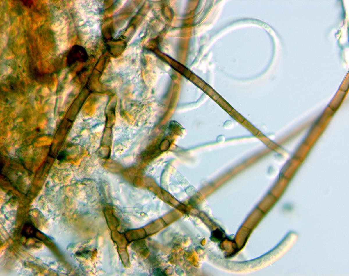 Image of Helicomyces torquatus