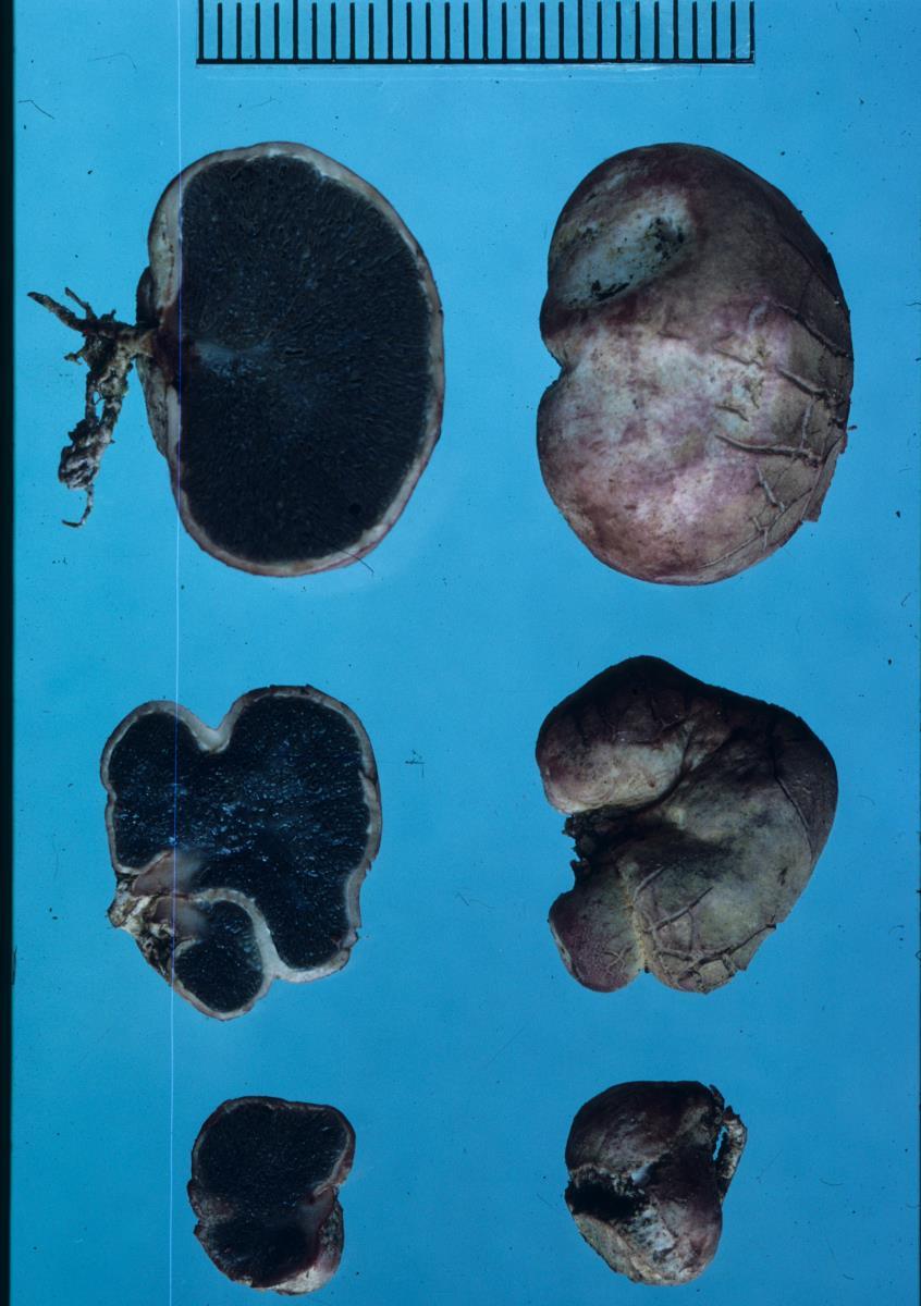 Image of Hysterangium rupticutis